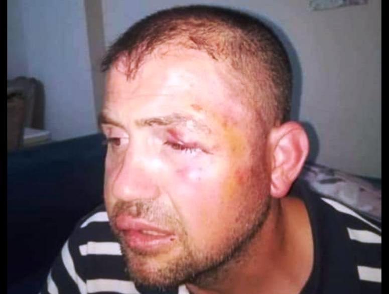 Gazi Ömür Karaman Demir sopalar ile  öldüresiye dövülmesine  Tepki  Yağdı